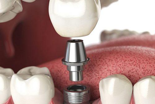 implant-v1